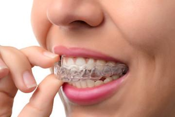 invisalign retainer | invisalign red deer county ab