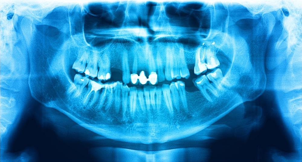 Dental xray | Dentist Red Deer County