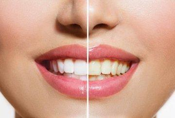 Before and after of whitened teeth